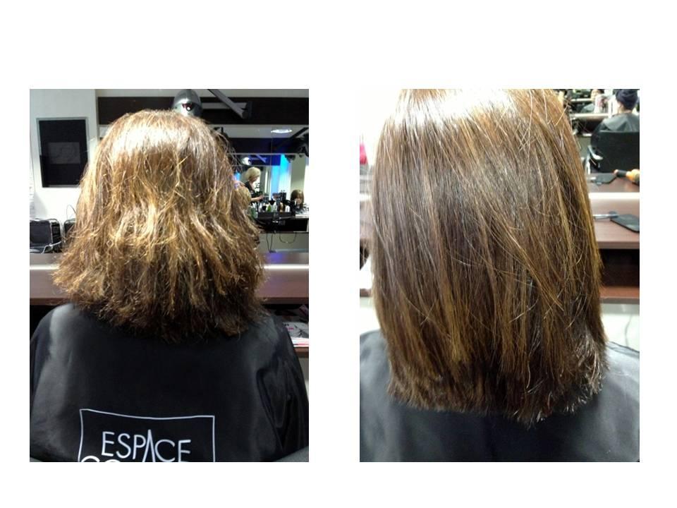 Femibion et la chute des cheveux
